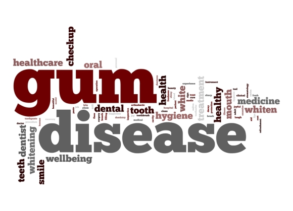 Spotlight on Effects of Gum Disease by Colorado Advanced Dentistry