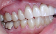 receding gums back teeth