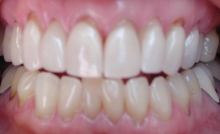 receding gums front teeth