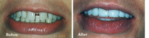 Before & After photos of Dental Treatment