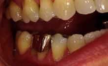 gum recession photo