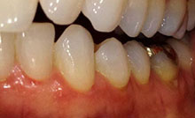 receding gums lower teeth