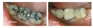 Before & After photos of  Teeth Treatment