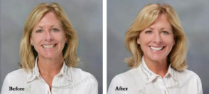 Before & After photos of  Dental Procedures
