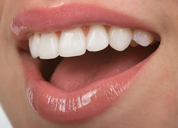 Cosmetic Dental Veeners in Denver, CO