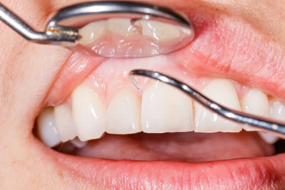 Gum Disease Treatment in Denver, CO