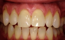 Tips for Preventing Teeth & Gum Disease in Denver, CO