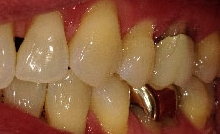 Gingival Recession Treatment in Denver, CO