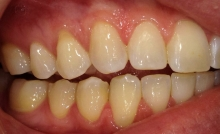 Mild Gum Recession Treatment at Colorado Advanced Dentistry