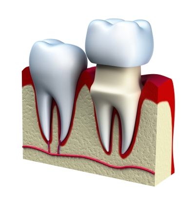 Guide to Dental Crowns in Denver, CO