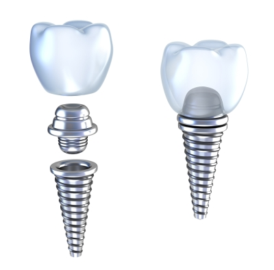 Choosing Dental Implants in Denver, CO