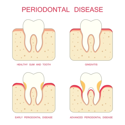 Periodontal Disease Treatment at Colorado Advanced Dentistry